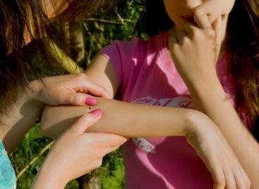 """Реч епидемиолога: Највећу шансу да """"закаче"""" крпеља имају деца"""
